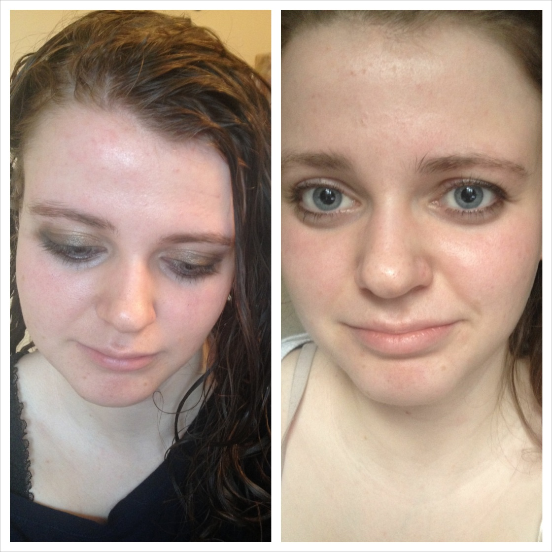 left: without face makeup when I started using right: makeupless after five months of use